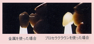 オールセラミックは天然歯に近い透明感があります