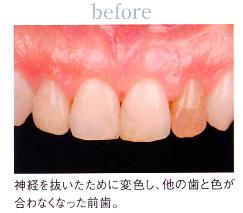 before|歯の色や形が気になる方へ|こんな方にオールセラミックはおすすめです