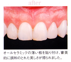 after|歯の色や形が気になる方へ|こんな方にオールセラミックはおすすめです